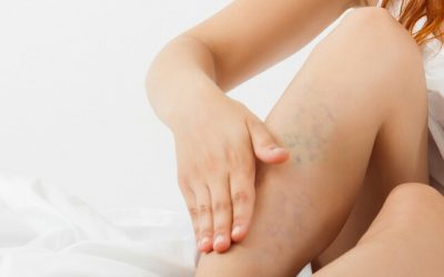 Trombose: o que é, quais os sintomas, tipos, causas e tratamento?